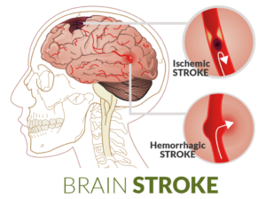 First aid for a stroke