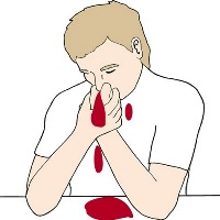 First aid for nasal bleeding